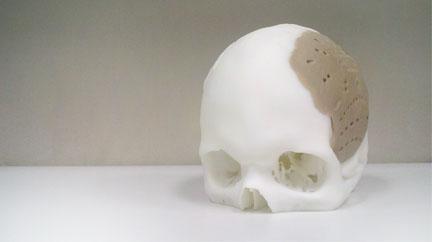 oxpekk-ig skull implant
